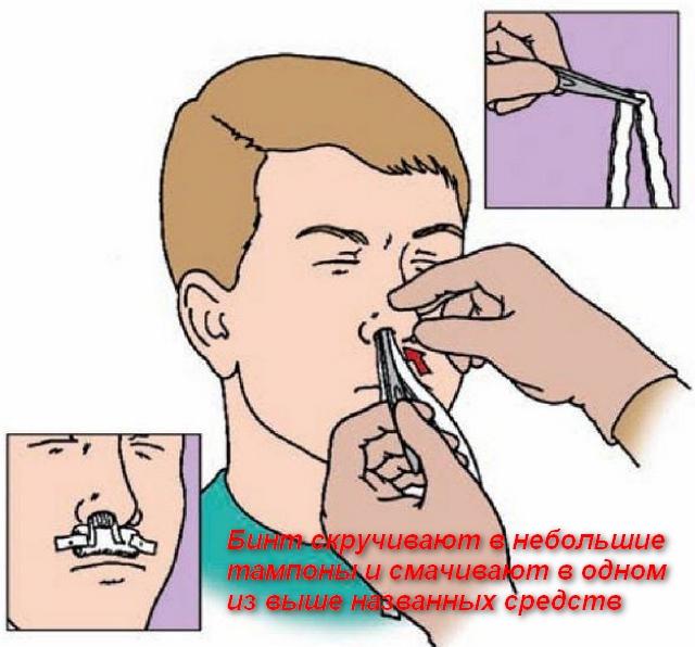 тампоны засовывают человеку в нос
