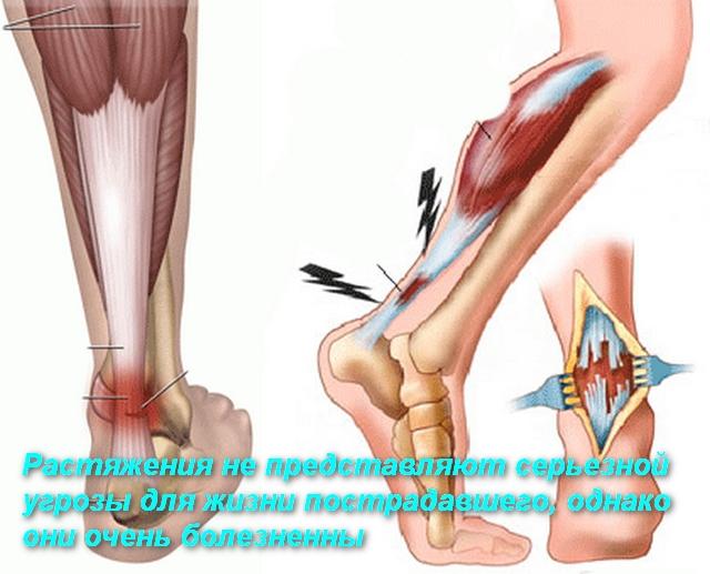 рисунок растяжения связок ноги