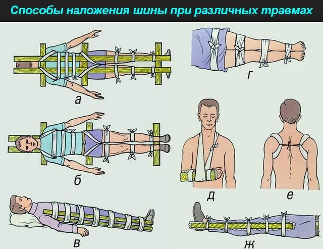 способы наложения шины при травмах