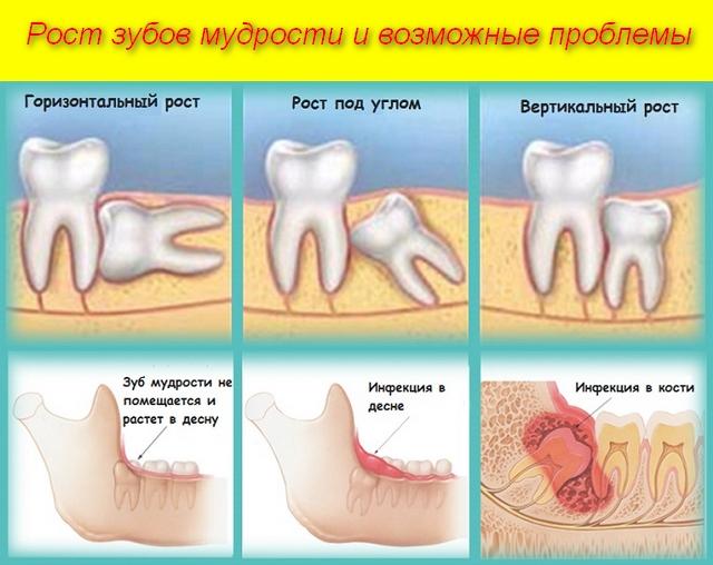 картинки зубов и описание проблем