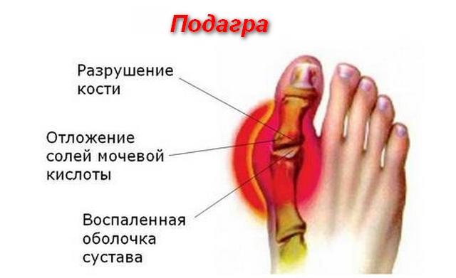 схема и описание причин болезни