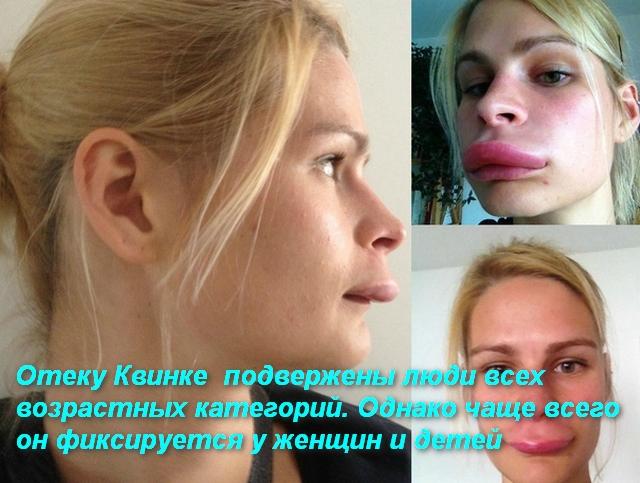 лицо женщины после отека квинке