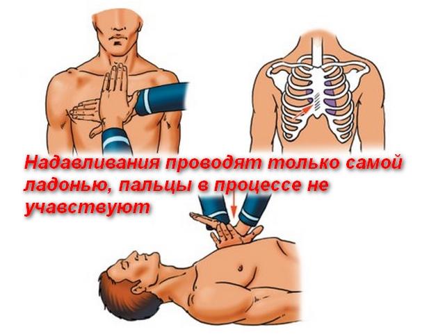 схема расположения ладоней рук на грудной клетке