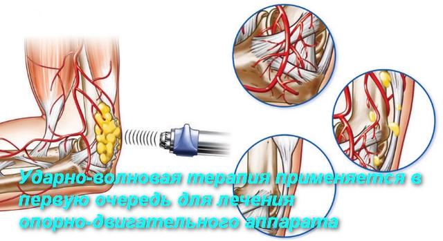 схема лечения сустава