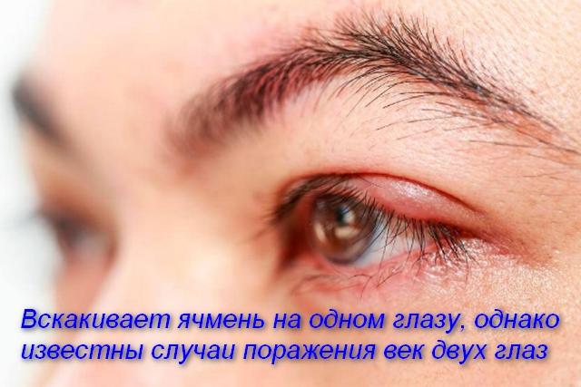 глаза женщины с воспалением
