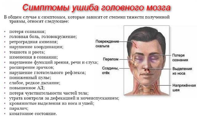 описание симптомов и схема головы