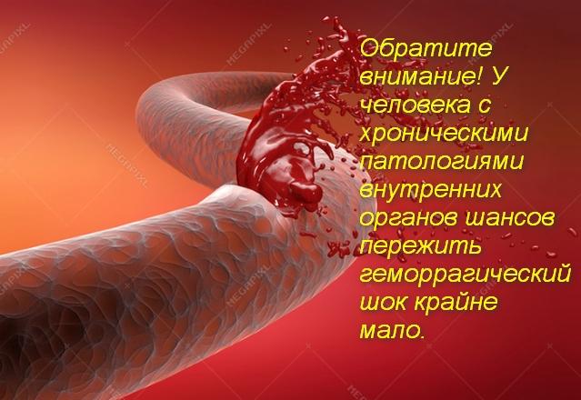из кровяного сосуда струя крови