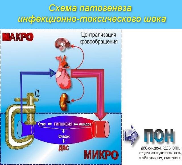схема развития болезни