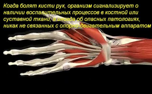 Почему болят кисти рук лечение