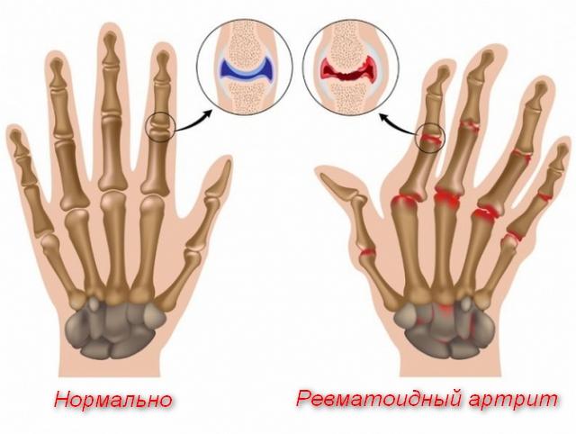 кисть руки в норме и при болезни