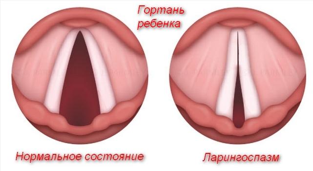 вид здоровой и больной гортани