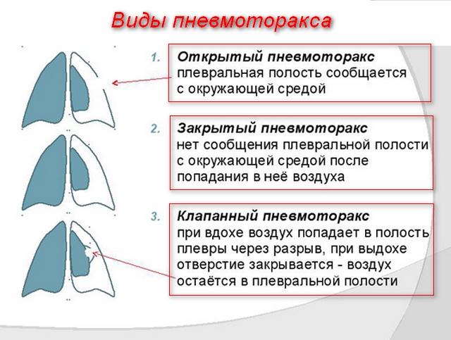 картинки видов патологии