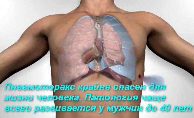 схема патологии легких в теле человека