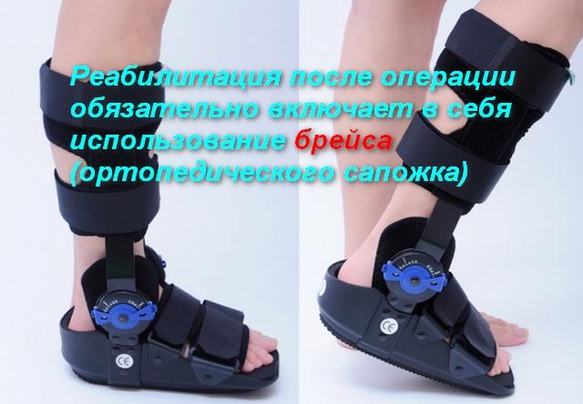 вид ортопедической обуви