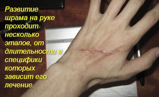 рука и на ней шрам от пореза