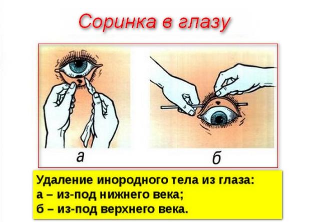инструкция по удалению соринки