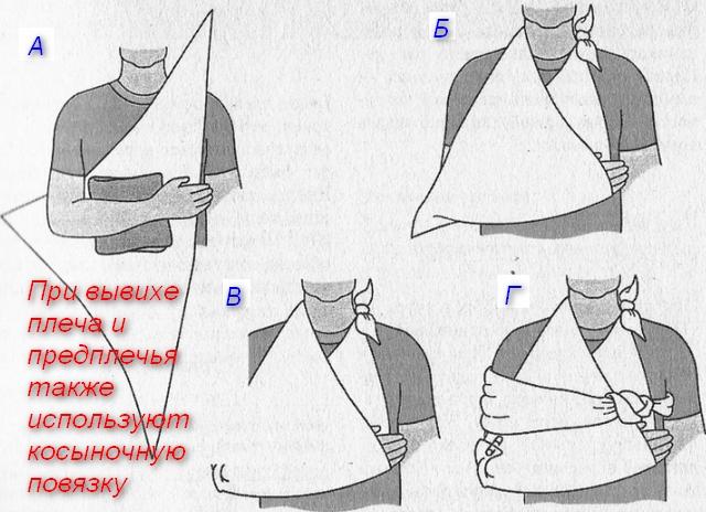 порядок наложения повязки