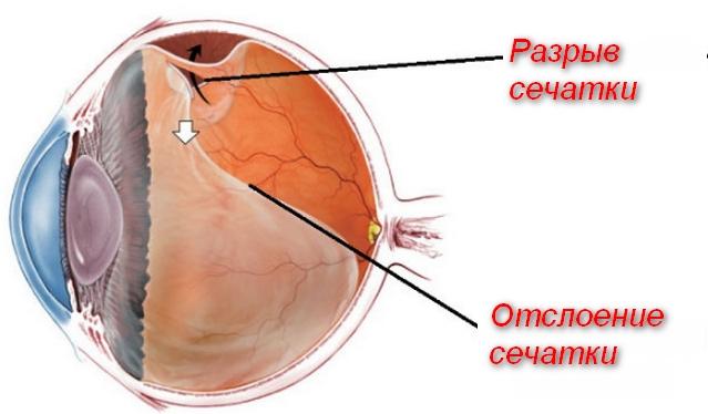 схема повреждения глаза