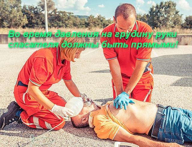 2 спасателя проводят реанимацию человека