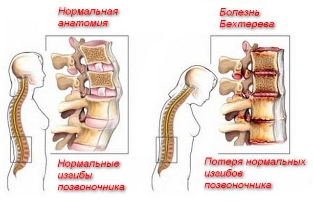 картинки нормальной и больной спины