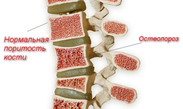 нормальная кость и остепороз