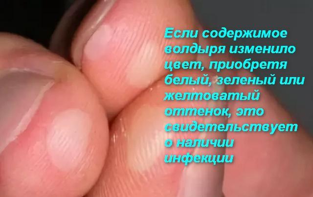 На пальце водянистые пузырьки