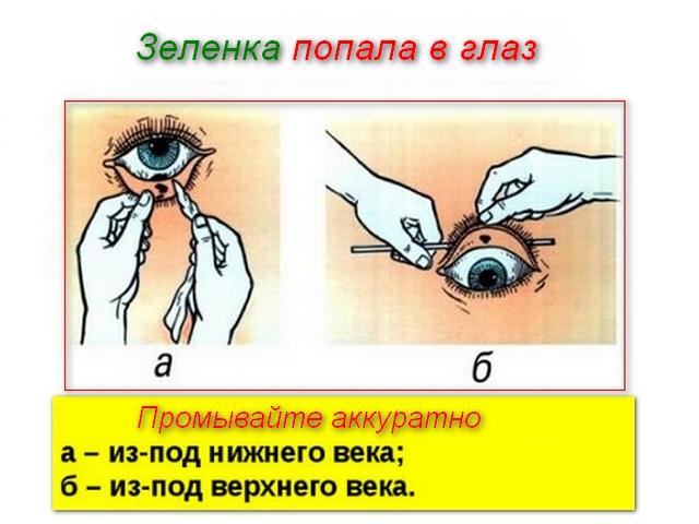промывка глаза