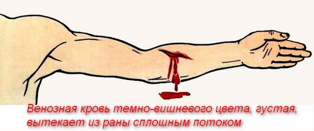 из руки идет кровь