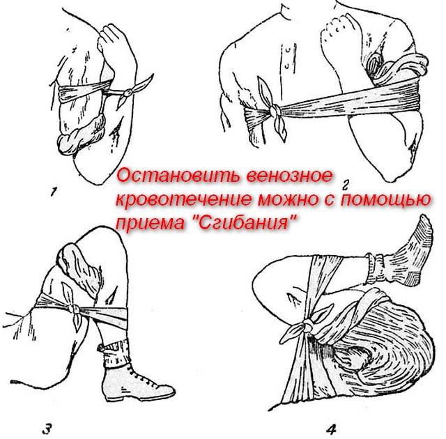 схемы приемов остановки кровотечения