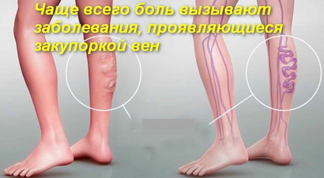 ноги с патологией
