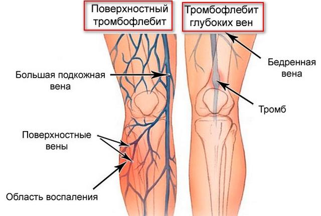 расположение вен на ногах