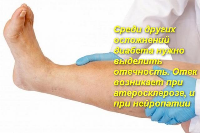 врач держит ногу