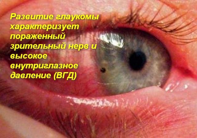 человеческий глаз с красным белком