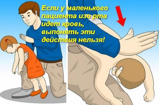 мужчина хлопает ладонью по спине ребенку