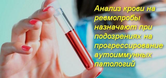 врач держит в руках пробирку с кровью