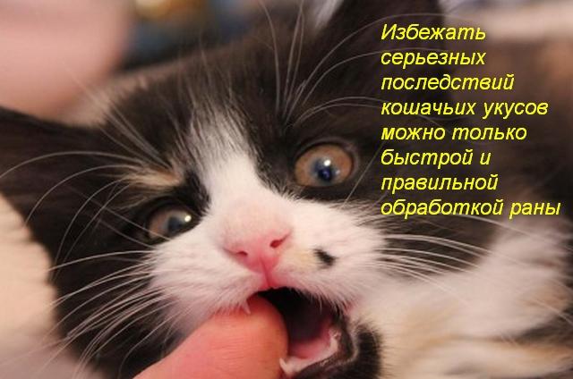кошка кусает за палец человека
