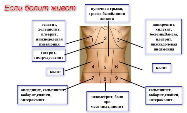 схема человека и распределения болей