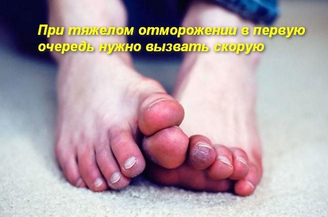 пальцы на ногах красного цвета