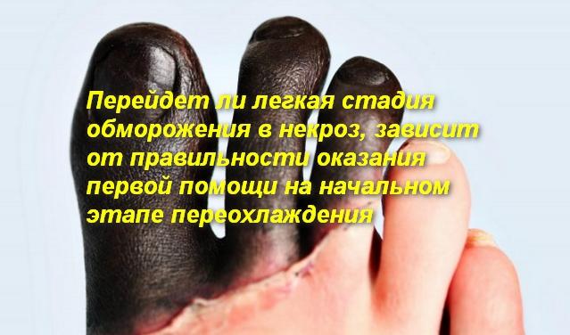 черные пальцы на ногах