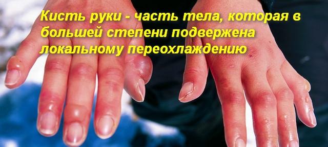 кисти рук с волдырями на пальцах