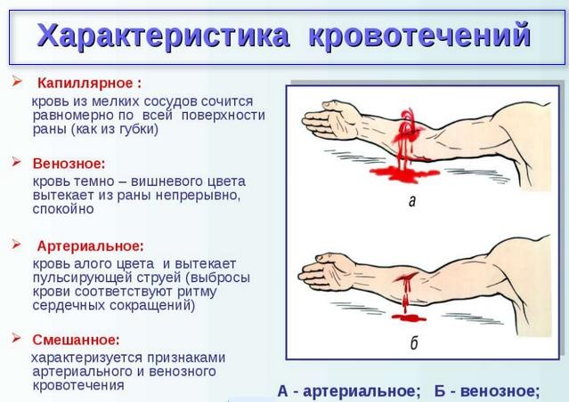 Неотложная помощь при кровотечении артериальном кровотечении